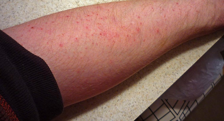What Kind of Skin Rash Causes Itching?