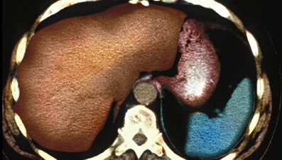 What Is the Largest Gland in the Human Body?