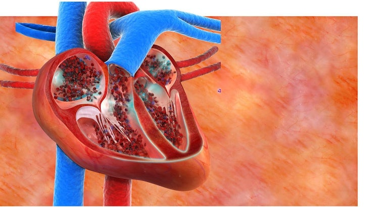 What Is a Leaking Heart Valve?