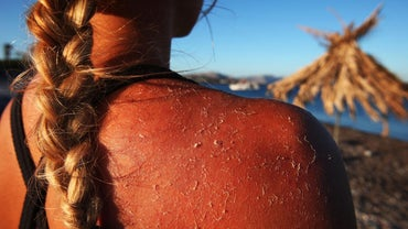How Long Do Second Degree Sunburns Last?