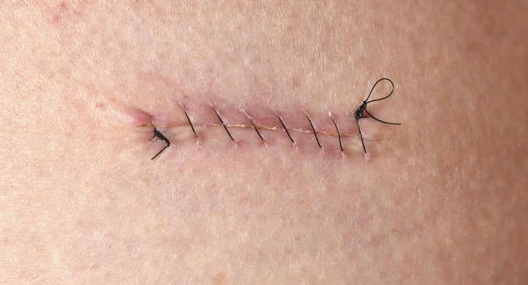How Long Should Stitches Be Left In?