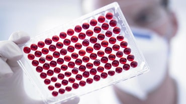 What Does Low MPV in a Blood Test Mean?