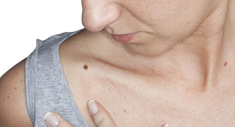 What Does It Mean When a Mole Itches?