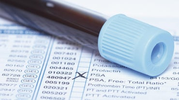 What Are Medical Codes for Billing?