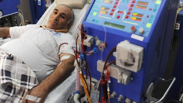 What Is One's Life Expectancy After Stopping Dialysis?