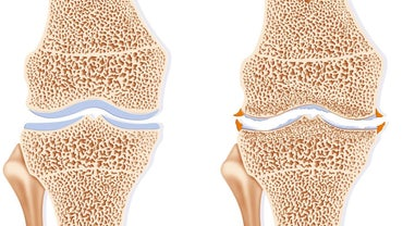 What Is an Osteophyte Formation?