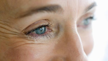 How Do You Prevent and Reduce Eye Wrinkles?
