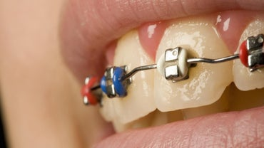 What Is the Purpose of the Rubber Bands on Braces?