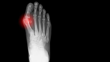 How Do You Recover From a Bunion Surgery?
