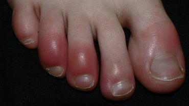 Is Red Toes a Symptom of Raynaud's Syndrome?