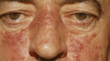 How Do You Get Rid of Red Cheeks?