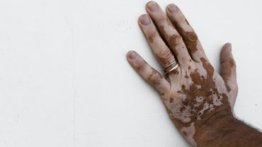 How Do You Get Rid of Skin Discoloration?