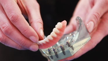 What Are Snap-on Dentures?