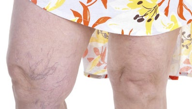 What Do Spider Veins Look Like?