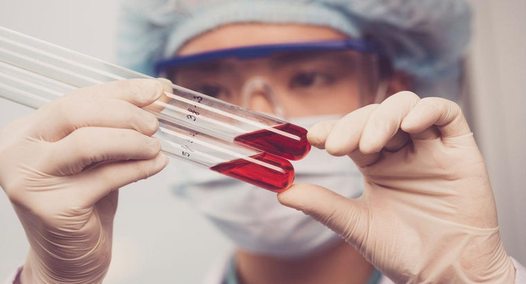 What Are the Symptoms of Ebola Virus Disease?