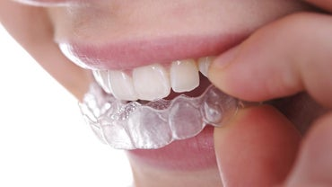 How Do You Straighten Teeth Without Braces?