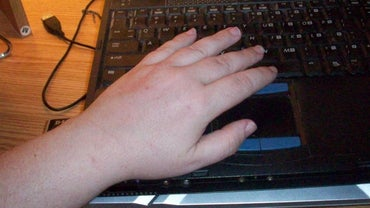 Is Swelling of the Hands Linked to Arthritis?