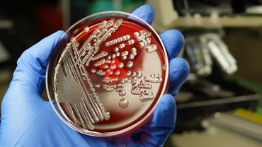 What Is the Symbiotic Relationship Between E. Coli and Humans?