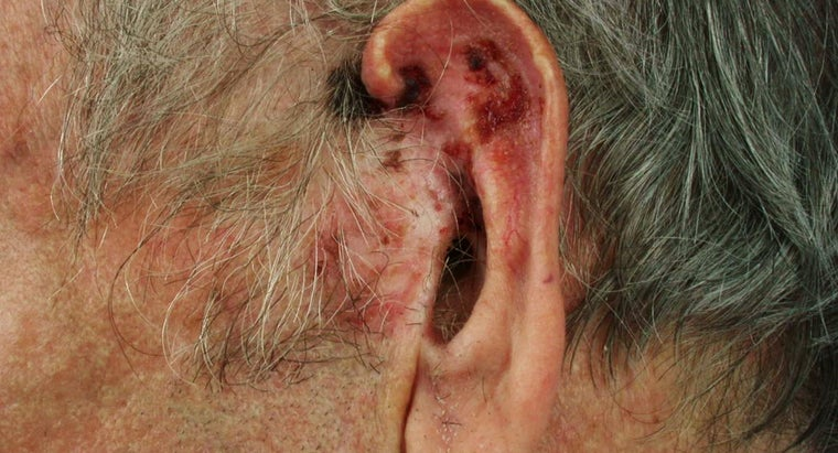 What Are the Symptoms of Basal Cell Carcinoma?