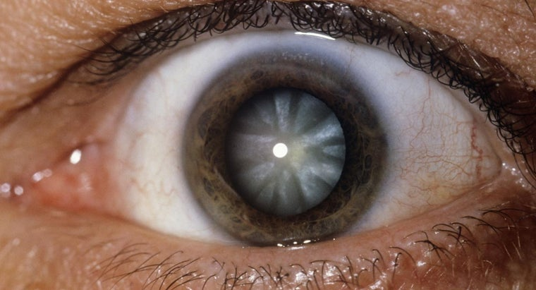 What Are the Symptoms of a Cataract?