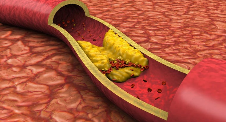 What Are Symptoms of Clogged Arteries?