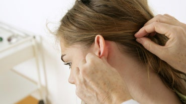 What Are the Symptoms of Scalp Fungus?