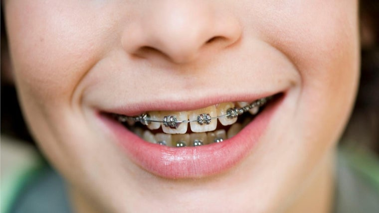 How Do Tongue Piercings Affect Braces Referencecom