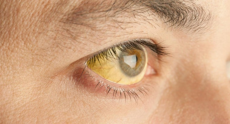 What Is the Treatment for Jaundice?