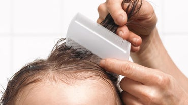 What Is the Treatment for Lice?
