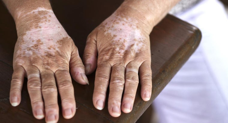 What Is the Treatment for Vitiligo?