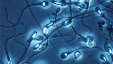 What Are the Treatments for Abnormal Sperm Morphology?
