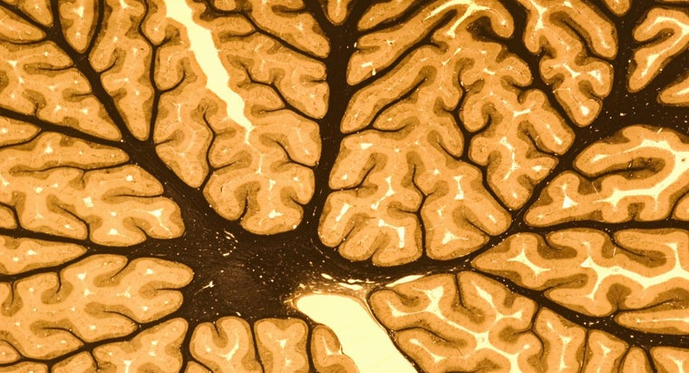 What Are The Two Main Parts Of The Nervous System Reference