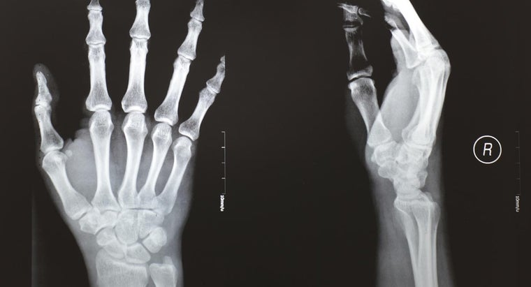 What Are the Symptoms of a Broken Thumb?