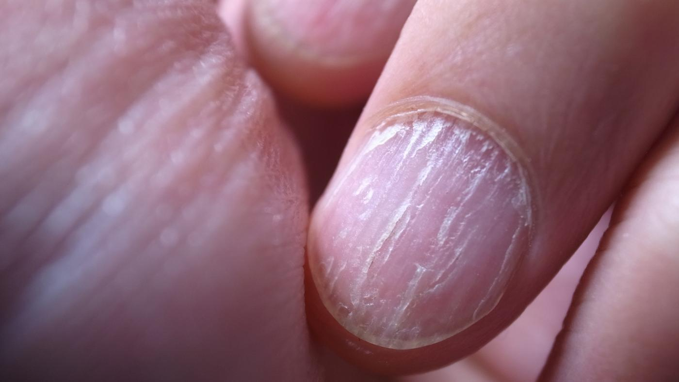 How Do You Treat Nail Fungus?