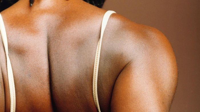 What Causes Back Pain Along the Shoulder Blade?