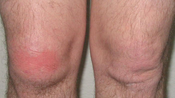 What Is Cellulitis of the Leg?