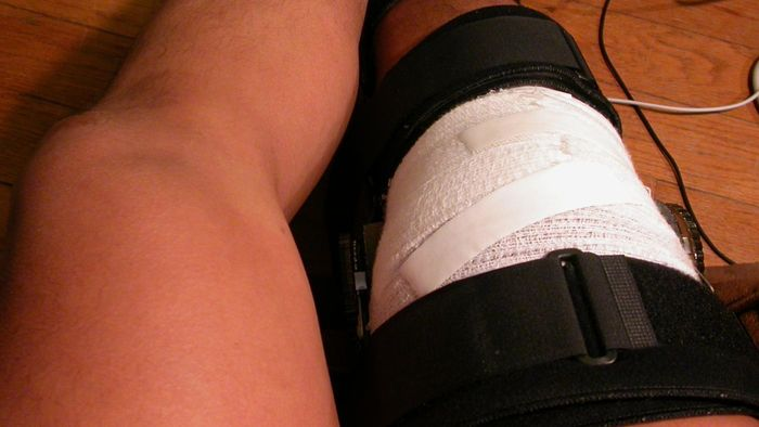 Where Can You Find a Knee Brace Size Chart?