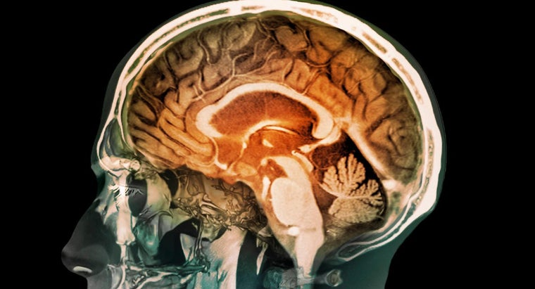 How Do You Find Images of the Human Brain?