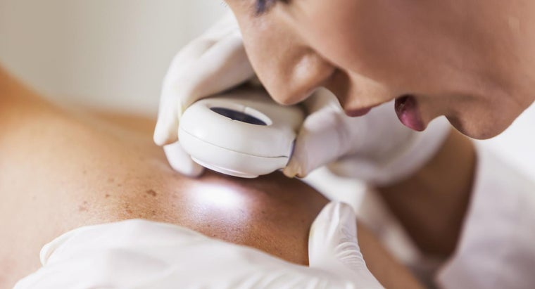 Where Can You Find Images of Melanoma Online?
