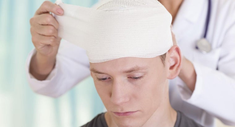 What Is a Brain Concussion?