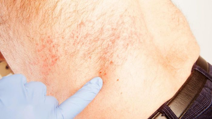What Is the Recovery Time From Shingles?
