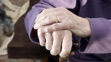 How Is Arthritis in the Hands Diagnosed?