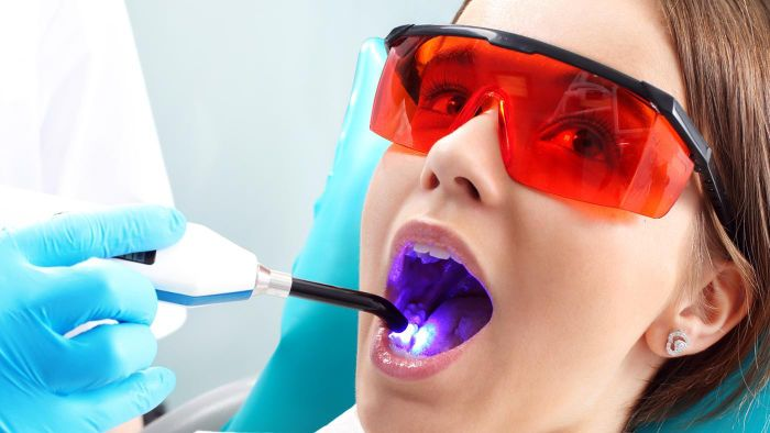 What Is a Fair Price for a Molar Root Canal?