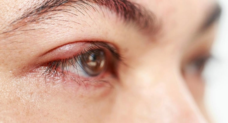What Are the Treatment Options for a Stye on the Eye?