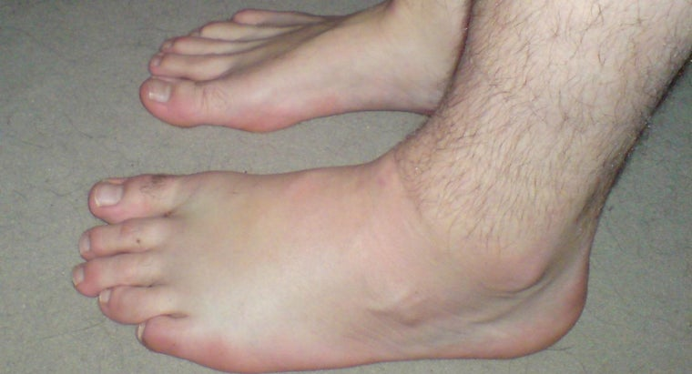 What Causes the Leg and Foot to Swell?