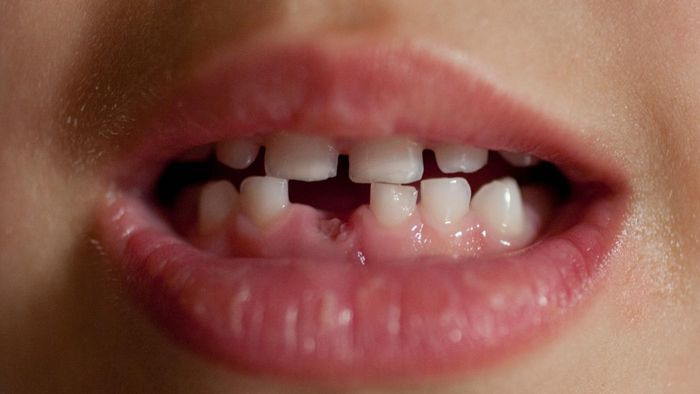At What Age Do Kids Start to Lose Their Baby Teeth?