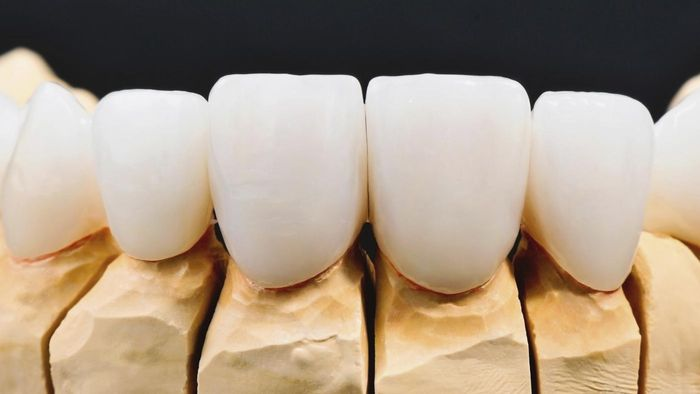 What Are Dental Veneers Made Of?