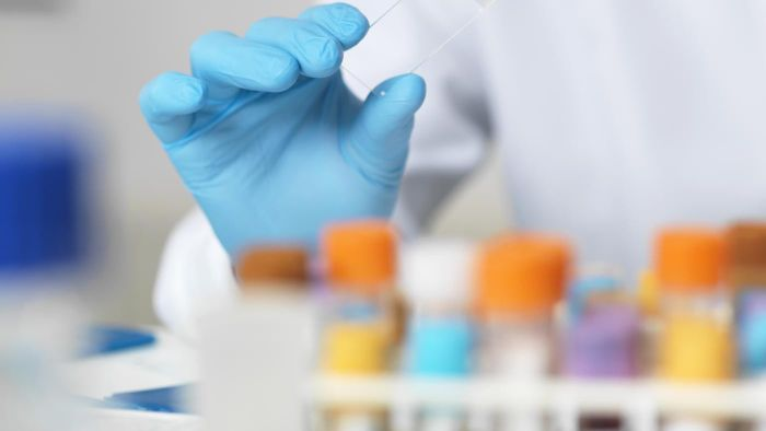 What Blood Tests Require a Patient to Fast Beforehand?