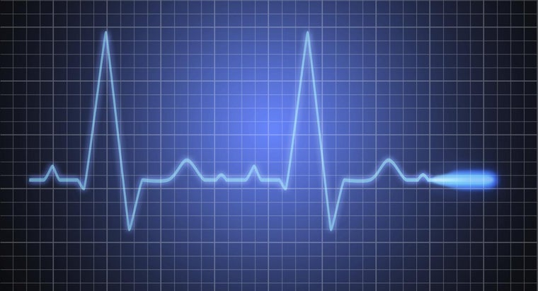 Can Heart Palpitations Be Fatal?
