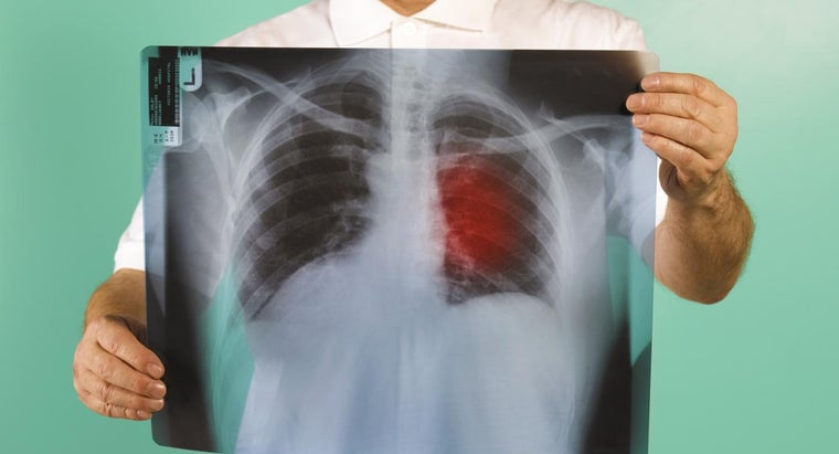 What Are the Different Types of Lung Cancer?